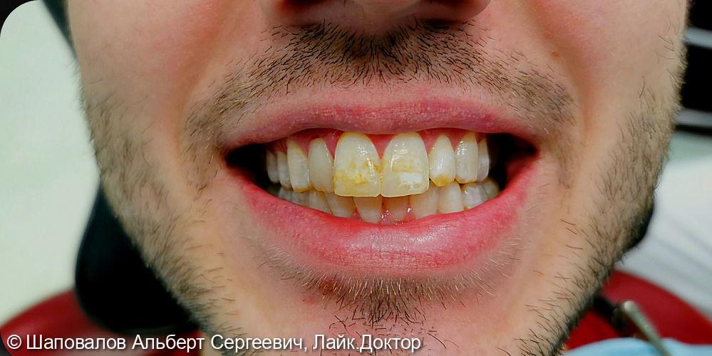 Лечение дисколорита эмали зубов - фото №1