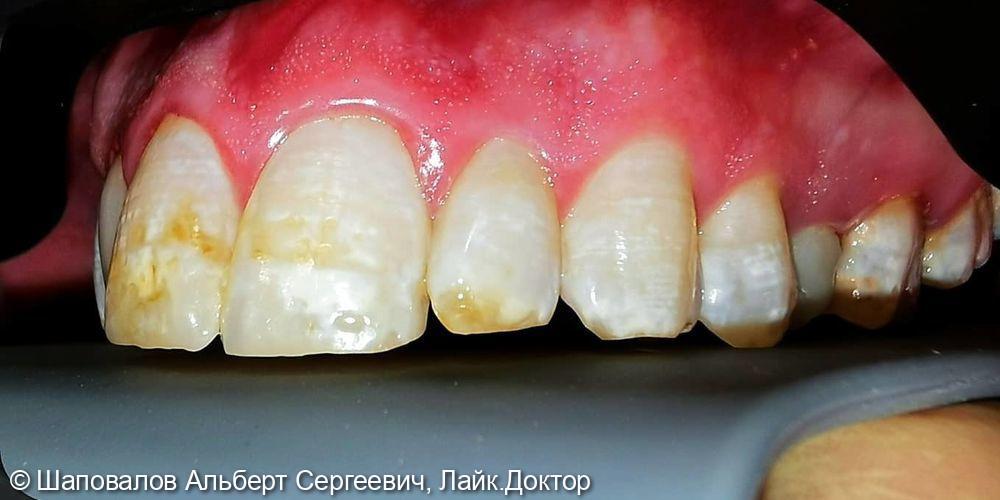 Лечение дисколорита эмали зубов - фото №2