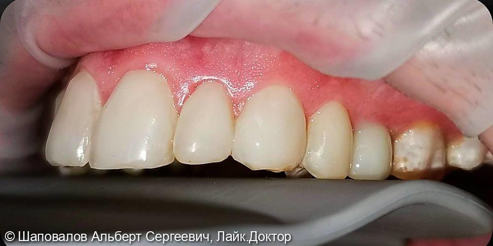 Лечение дисколорита эмали зубов - фото №3