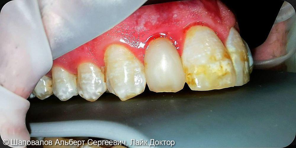 Лечение дисколорита эмали зубов - фото №4