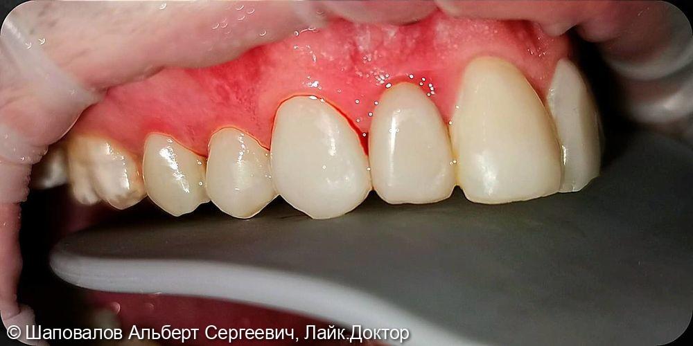 Лечение дисколорита эмали зубов - фото №5