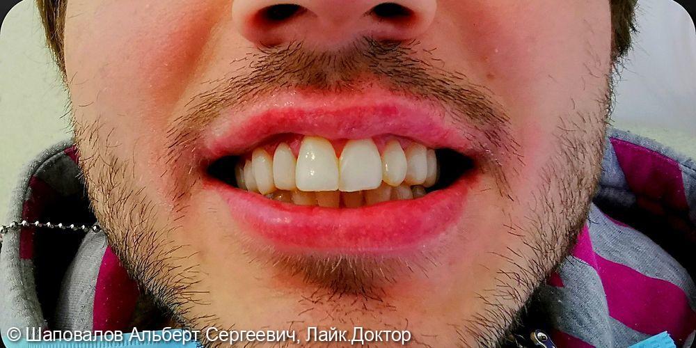 Лечение дисколорита эмали зубов - фото №6
