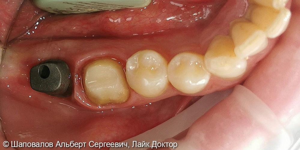 Протезирование на имплантате и на зубе - фото №2