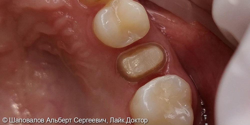 Протезирование невитального зуба цельнокерамической коронкой emax - фото №4