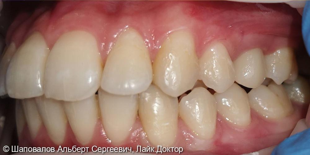 Протезирование невитального зуба цельнокерамической коронкой emax - фото №6