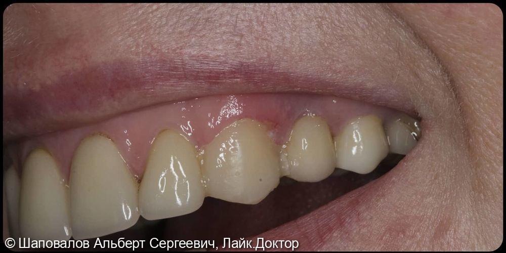 Замена несостоятельных реставраций на клыках верхней челюсти - фото №2