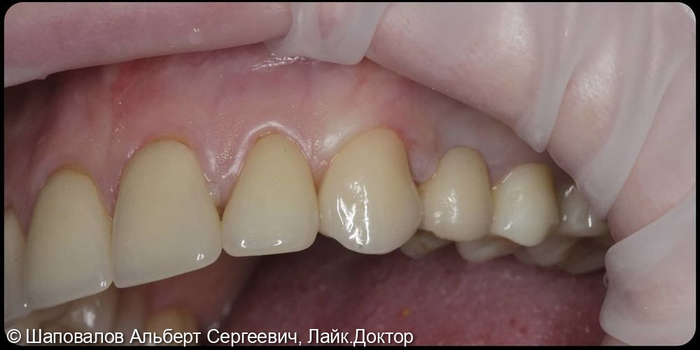 Замена несостоятельных реставраций на клыках верхней челюсти - фото №3