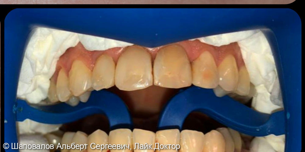 Восстановление фронтальных зубов после ортодонтии - фото №1
