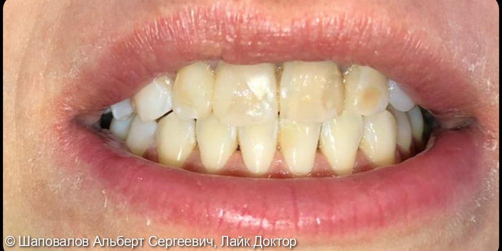 Восстановление фронтальных зубов после ортодонтии - фото №2