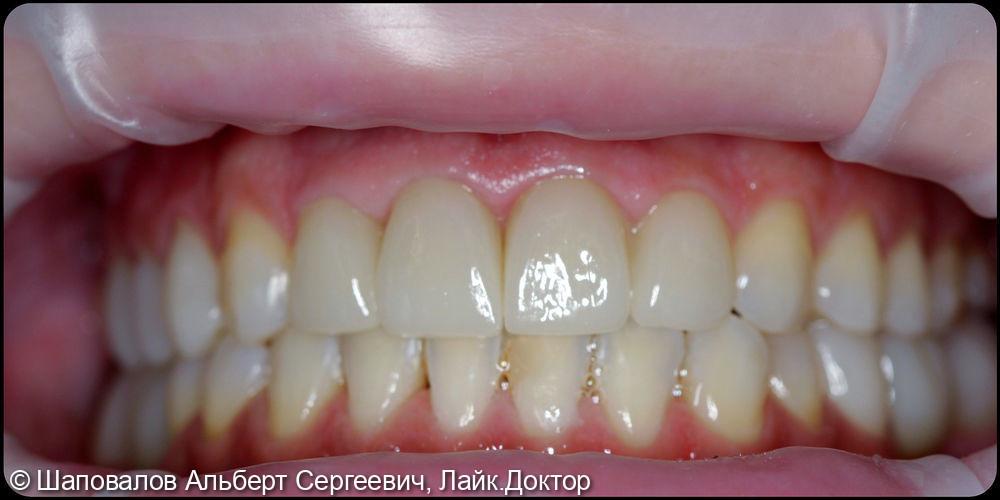Восстановление фронтальных зубов после ортодонтии - фото №3