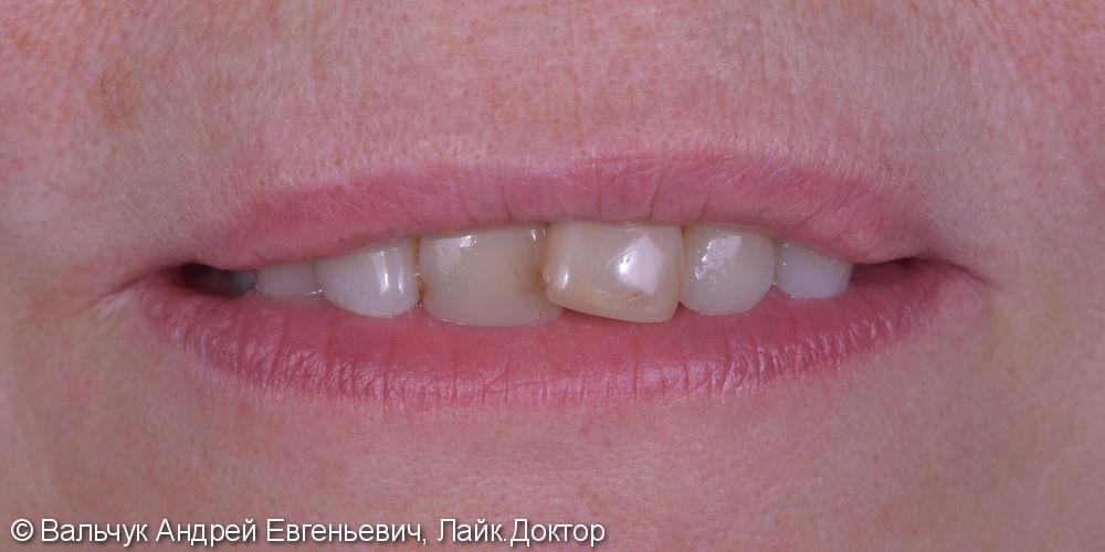 Имплантация зубов - вся челюсть! Реабилитация за 2 дня! - фото №1