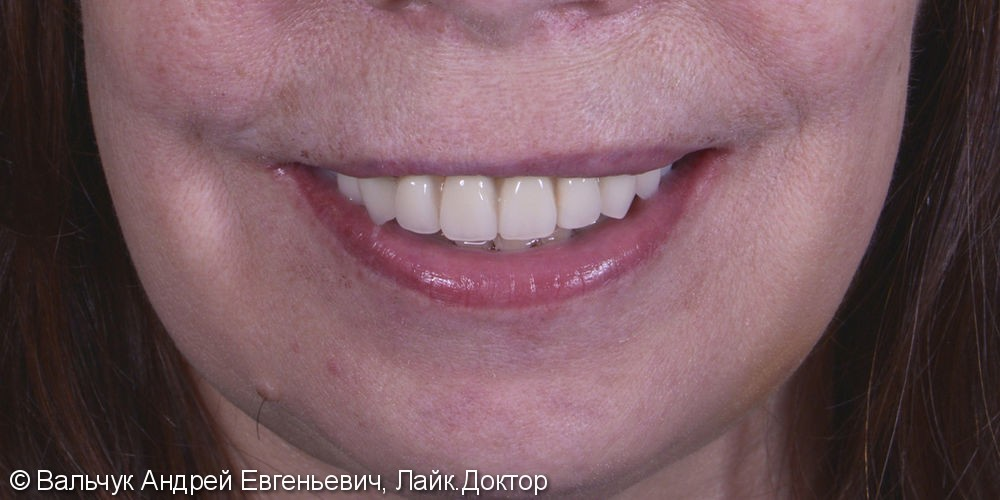 Имплантация зубов - вся челюсть! Реабилитация за 2 дня! - фото №7