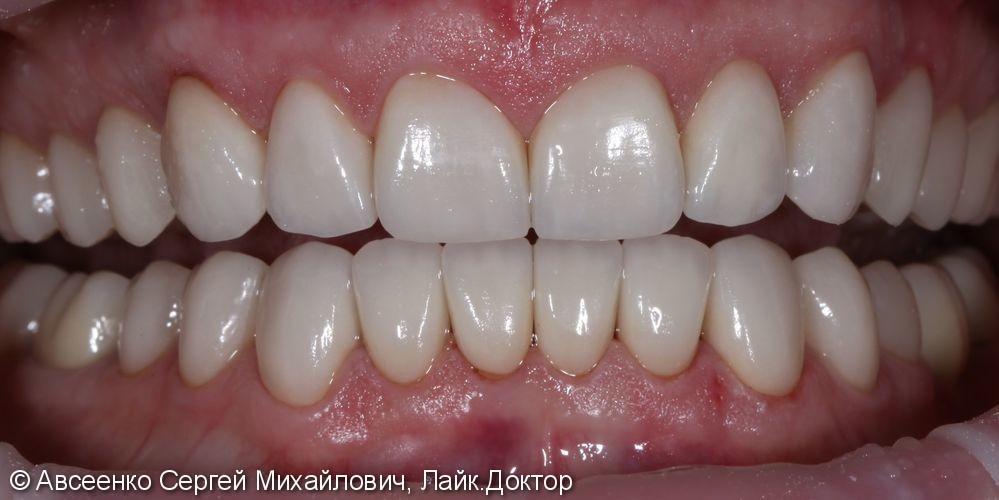 Красивая улыбка при помощи коронок E.max - фото №4
