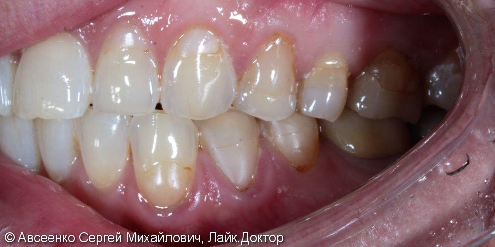 Реставрация зубов керамическими коронками - фото №1
