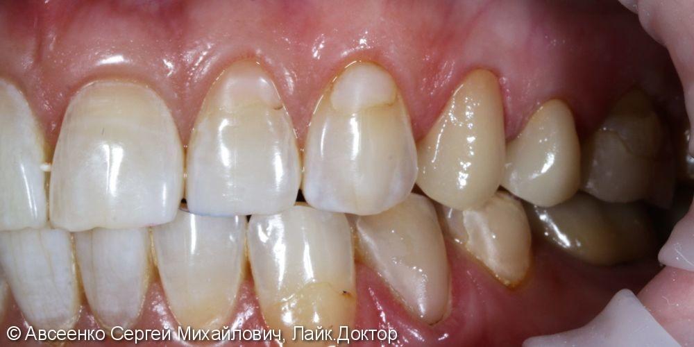 Реставрация зубов керамическими коронками - фото №6