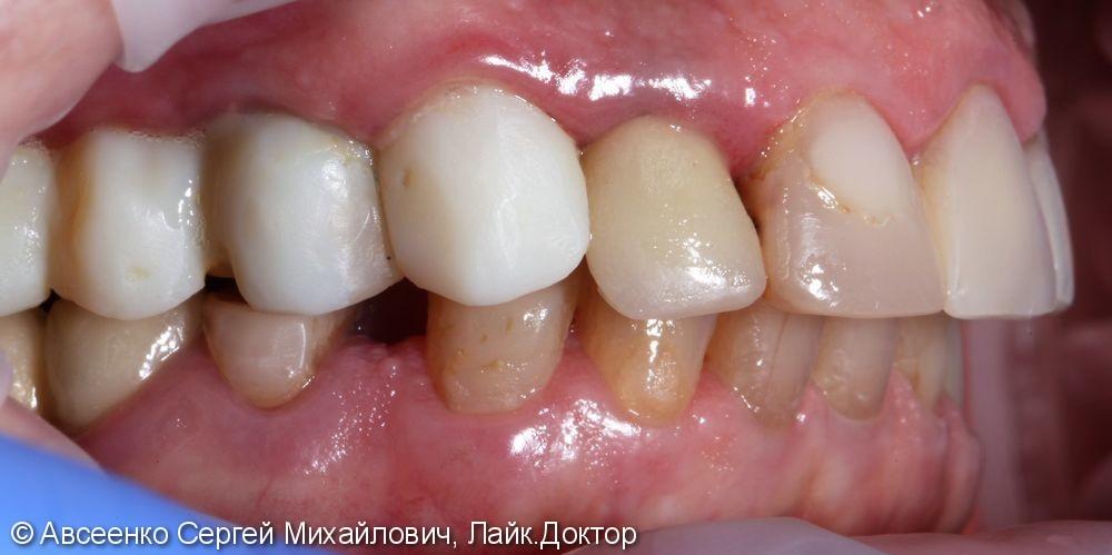 Установка керамических коронок на верхний и нижний зубные ряды - фото №2