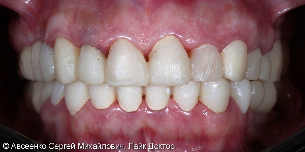 Установка керамических коронок на верхний и нижний зубные ряды - фото №3