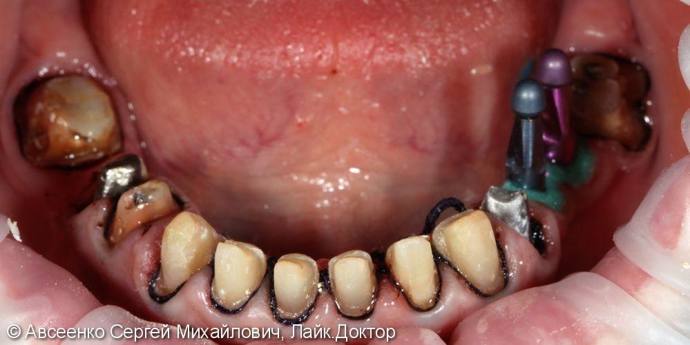 Установка керамических коронок на верхний и нижний зубные ряды - фото №4