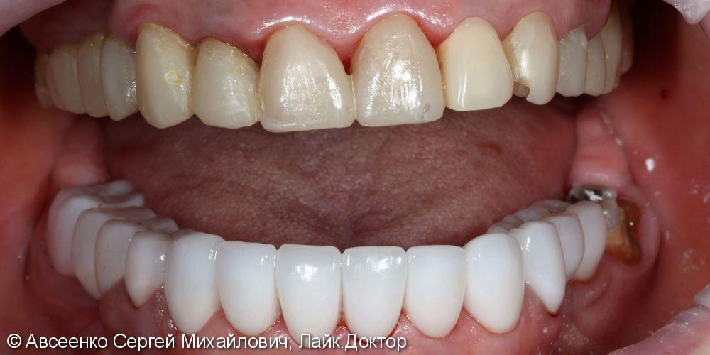 Установка керамических коронок на верхний и нижний зубные ряды - фото №5