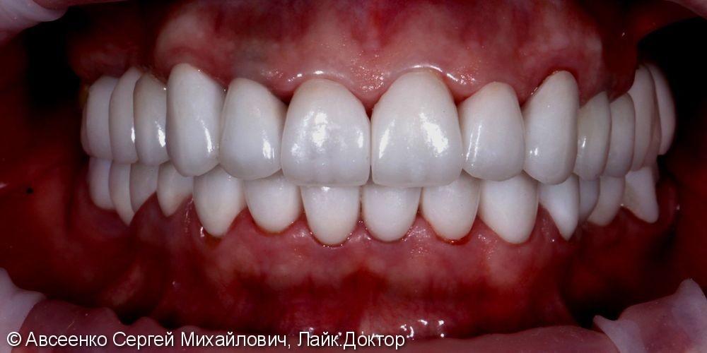Установка керамических коронок на верхний и нижний зубные ряды - фото №7