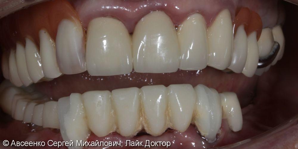 Восстановление зубов нижнего ряда (имплантация и установка безметалловых коронок на импланты) - фото №1
