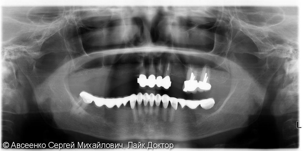Восстановление зубов нижнего ряда (имплантация и установка безметалловых коронок на импланты) - фото №3