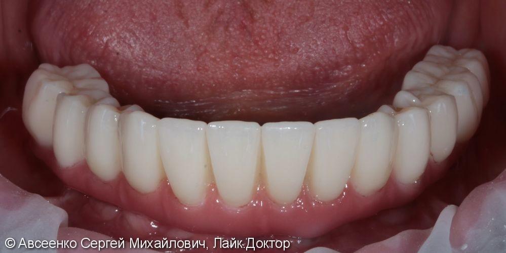 Восстановление зубов нижнего ряда (имплантация и установка безметалловых коронок на импланты) - фото №7