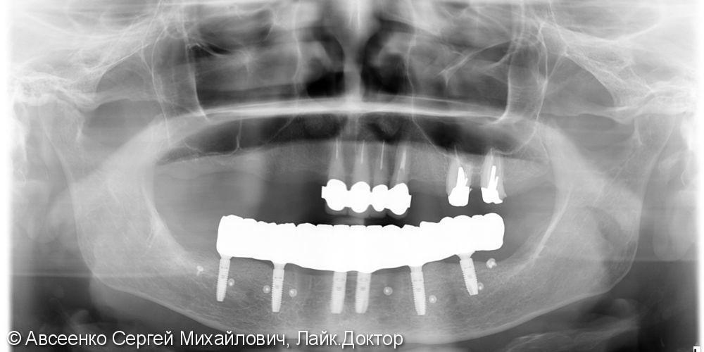 Восстановление зубов нижнего ряда (имплантация и установка безметалловых коронок на импланты) - фото №8