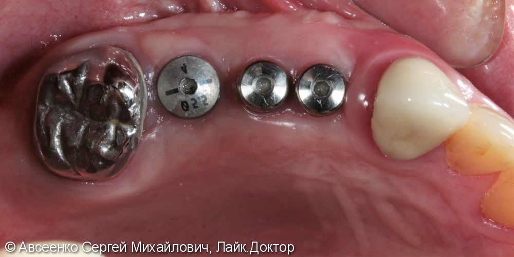 Имплантация зубов и установка коронок с опорой на имплант - фото №2