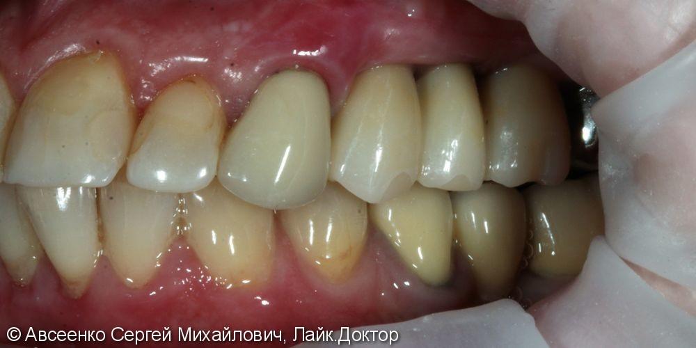Имплантация зубов и установка коронок с опорой на имплант - фото №4