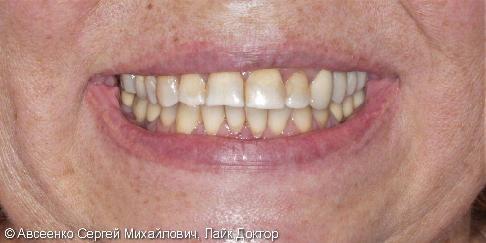 Имплантация зубов и установка коронок с опорой на имплант - фото №5