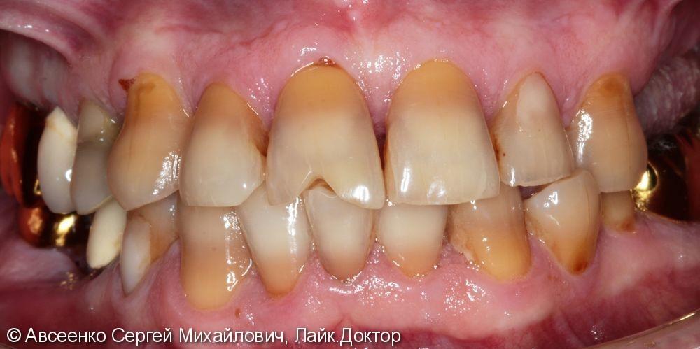 Восстановление зубных рядов с помощью имплантов и коронок - фото №1