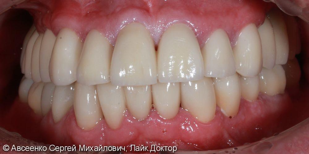 Восстановление зубных рядов с помощью имплантов и коронок - фото №5