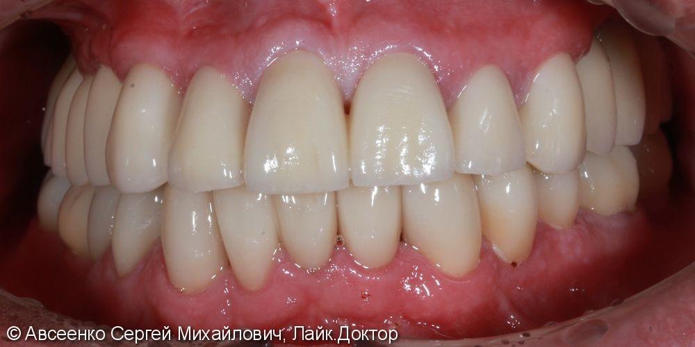 Восстановление зубных рядов с помощью имплантов и коронок - фото №10