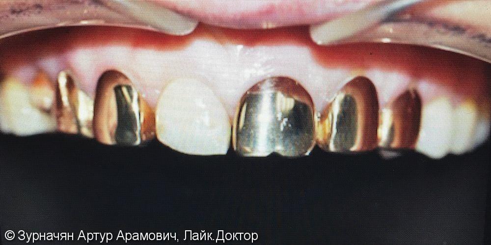 Микро протезирование в зоне улыбки - фото №1
