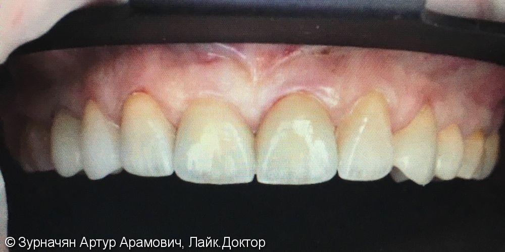 Микро протезирование в зоне улыбки - фото №2
