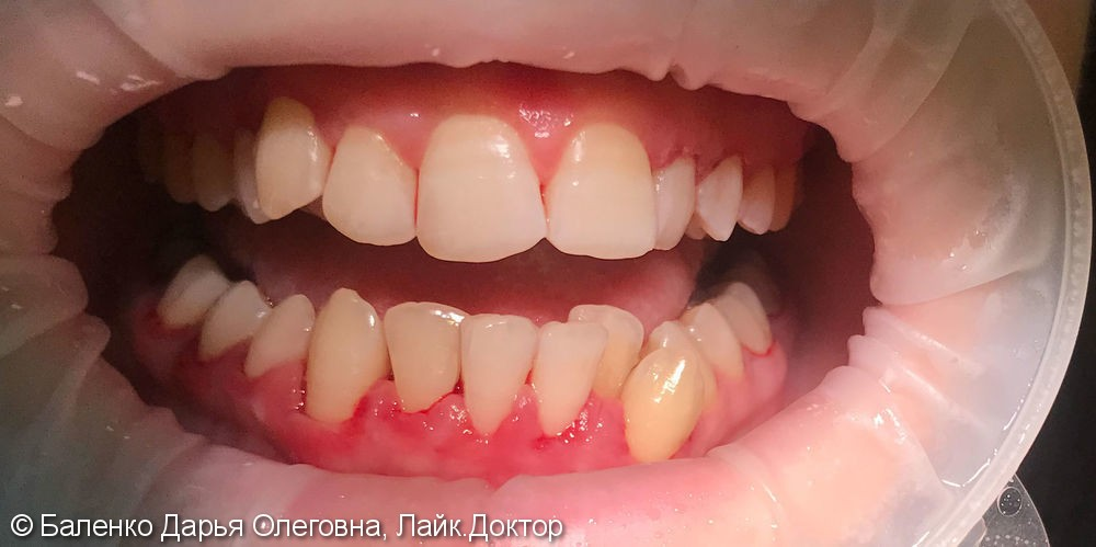 Жалобы на кровоточивость десен при читке зубов - фото №2