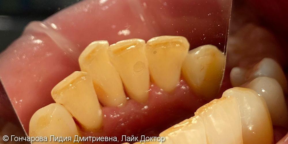 Гигиена зубов - фото №4