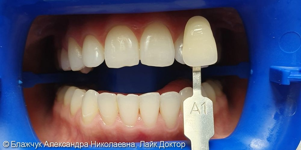 Результат отбеливания зубов ZOOM 4 - фото №1