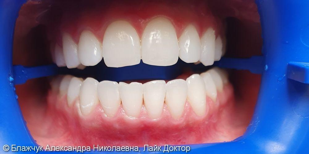Результат отбеливания зубов ZOOM 4 - фото №2