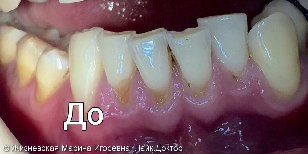Закрытие рецессий на передних зубах, до и после - фото №1
