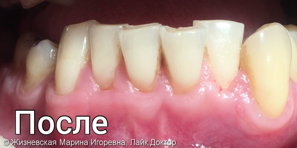 Закрытие рецессий на передних зубах, до и после - фото №2