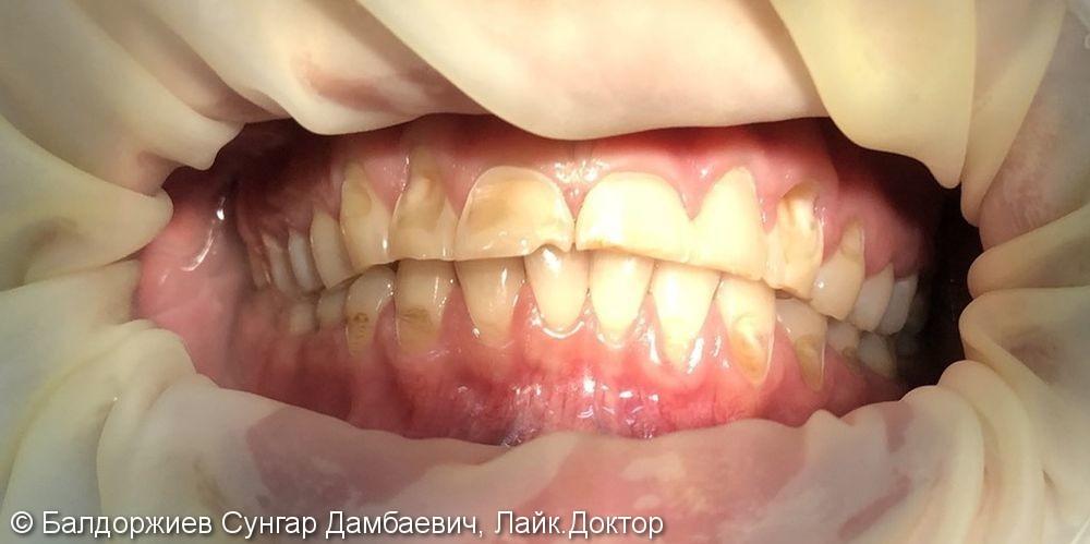 Реабилитация пациента со множественными некариозными поражениями сопровождающиеся стираемостью эмали - фото №1