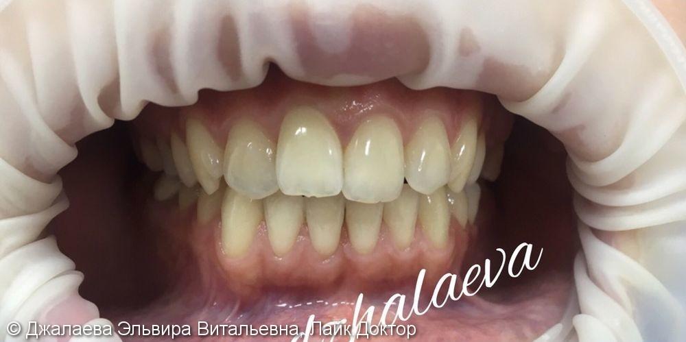 Результат отбеливания зубов ZOOM-4, до и после - фото №1
