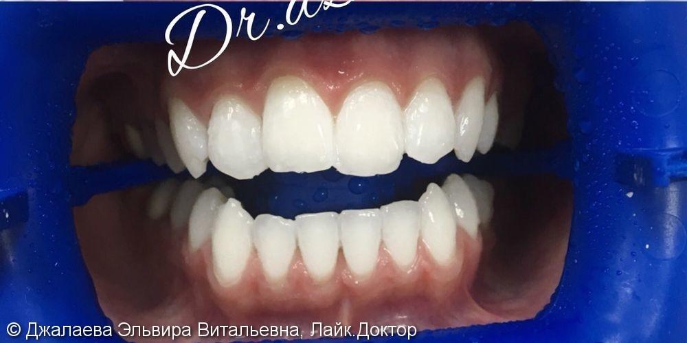 Результат отбеливания зубов ZOOM-4, до и после - фото №2