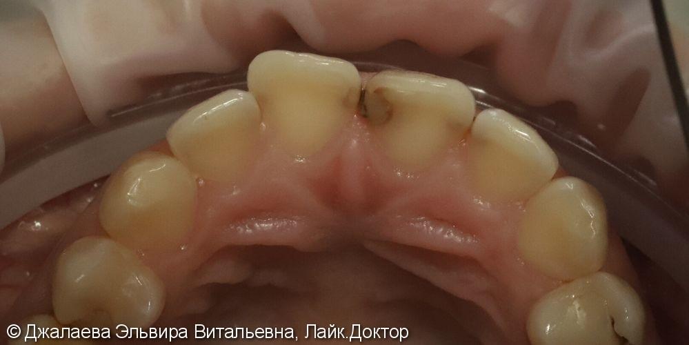 Лечение кариеса трех передних зубов за одно посещение - фото №1