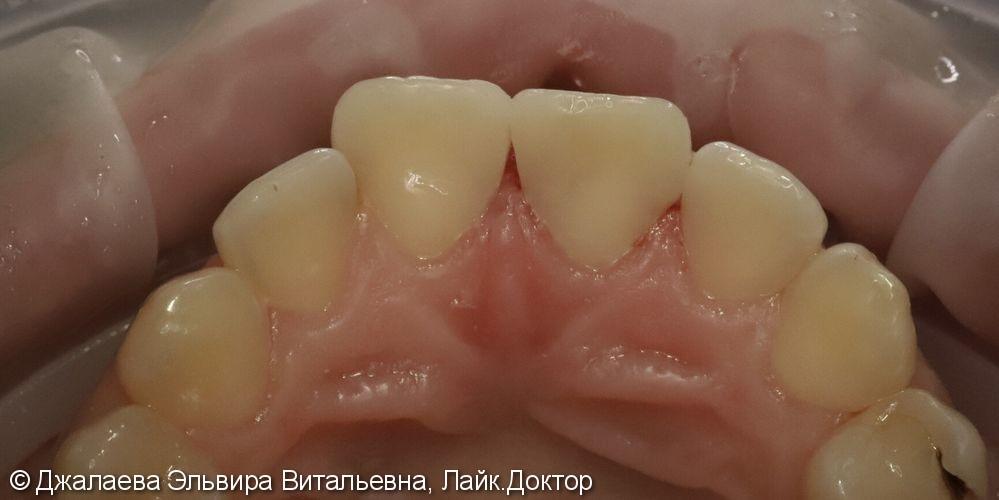 Лечение кариеса трех передних зубов за одно посещение - фото №2