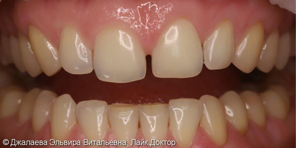 Отбеливание зубов системой zoom 4 - фото №1