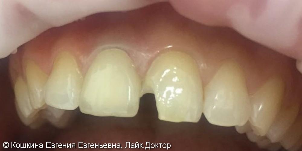 Эстетическая реставрация скола зуба - фото №1
