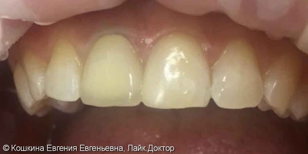 Эстетическая реставрация скола зуба - фото №3